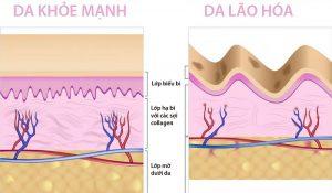Collagen là chất gì?